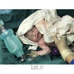 جراحی سزارین نوزادان در بیمارستان فرمانیه<