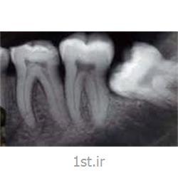 رادیولوژی دیجیتال دندان پری اپیکال PA<