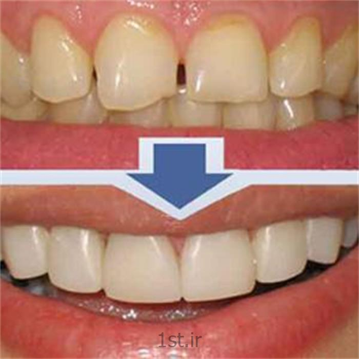 عکس خدمات درمانی دندانپزشکیلمینیت دندان