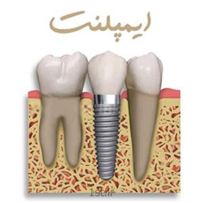 عکس خدمات درمانی دندانپزشکیایمپلنت دندانی