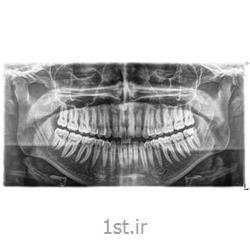 رادیولوژی دیجیتال دندان پانورکس OPG
