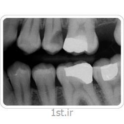 عکس خدمات درمانی دندانپزشکیرادیولوژی دیجیتال دندان بایت وینگ BW