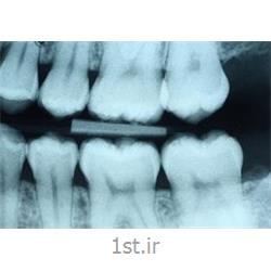 رادیولوژی دیجیتال دندان بایت وینگ BW