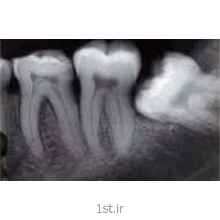 عکس خدمات درمانی دندانپزشکیرادیولوژی دیجیتال دندان پری اپیکال PA