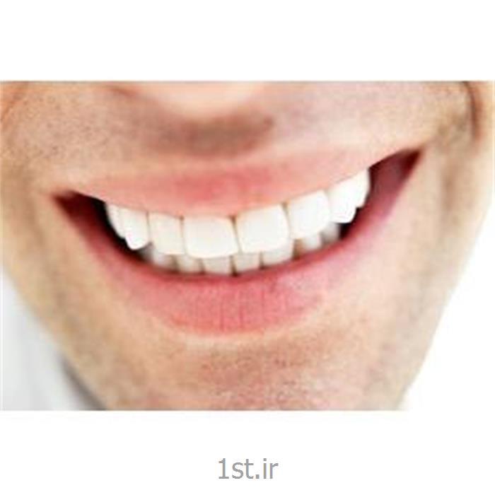 عکس سفید کننده دندانجرم گیری دندان
