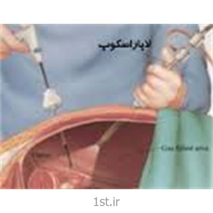 عکس جراحیجراحی متعدد لاپاروسکوپی توسط دکتر ژیلا عابدی
