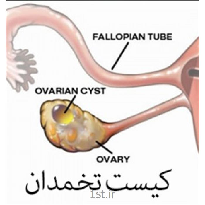 عکس جراحیدرمان حاملگی با لاپاروسکوپی laparoscopy