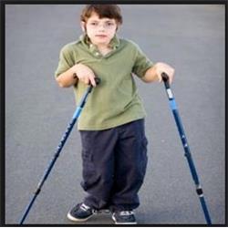 درمان کودکان فلج مغزی (CP)