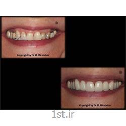 عکس خدمات درمانی دندانپزشکیلمینیت دندان و زیبایی ( لامینیت دندان ) Dental laminate