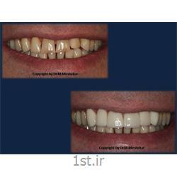 لمینیت دندان و زیبایی ( لامینیت دندان ) Dental laminate