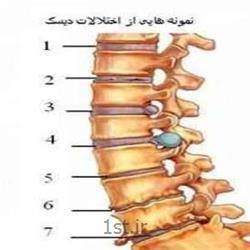 عکس خدمات درمانی فیزیوتراپیدرمان دردهای ناحیه کمر