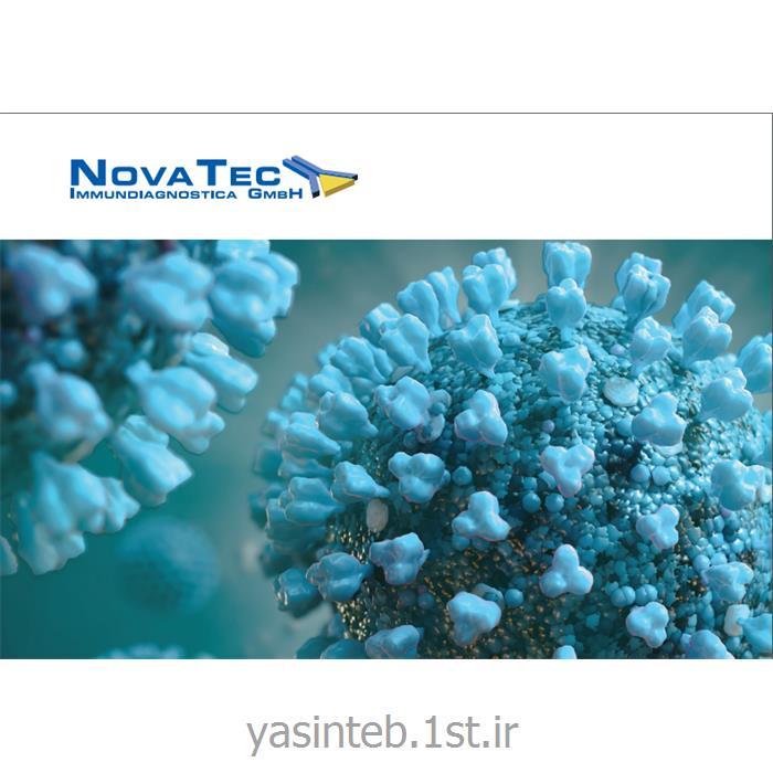 تست شاگاس( تریپانوزومیازیس )آی جی جی نوواتک