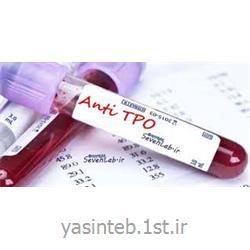 دیامتراAnti Thyroid Peroxidase(Anti  TPO) DIAMETRA
