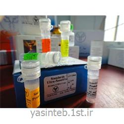 استاندارد 5 ویالی پروتئین ادرار- مایع نخاعی بهارافشان
