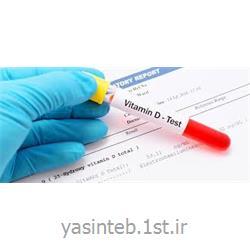 ویتامین دی 96 تست دیاسورس