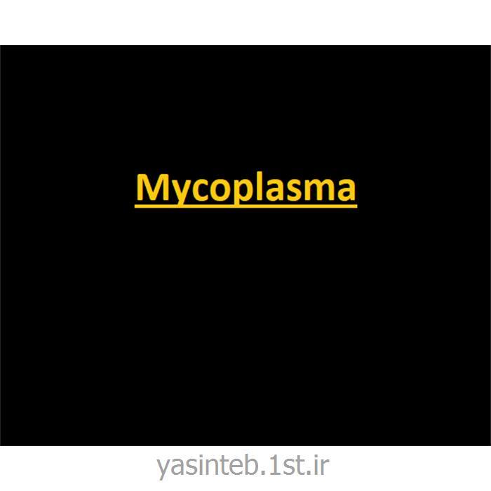 مایکوپلاسما آی جی جی
