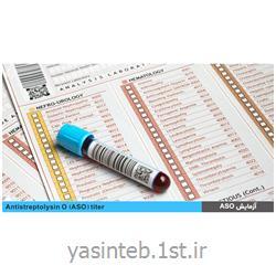 آنتی بادی ضد گلوتامیک اسید دکربوکسیلاز