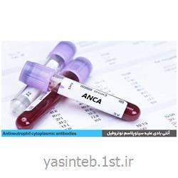 دیامترا ضدآنزیم پروتئیناز3