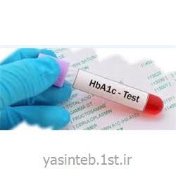 کیت HB A1C پارس آزمون