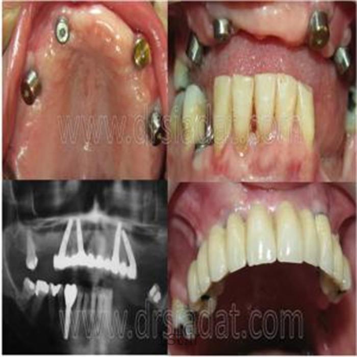 عکس خدمات درمانی دندانپزشکیدندان پزشکی شبانه روزی صادقیه