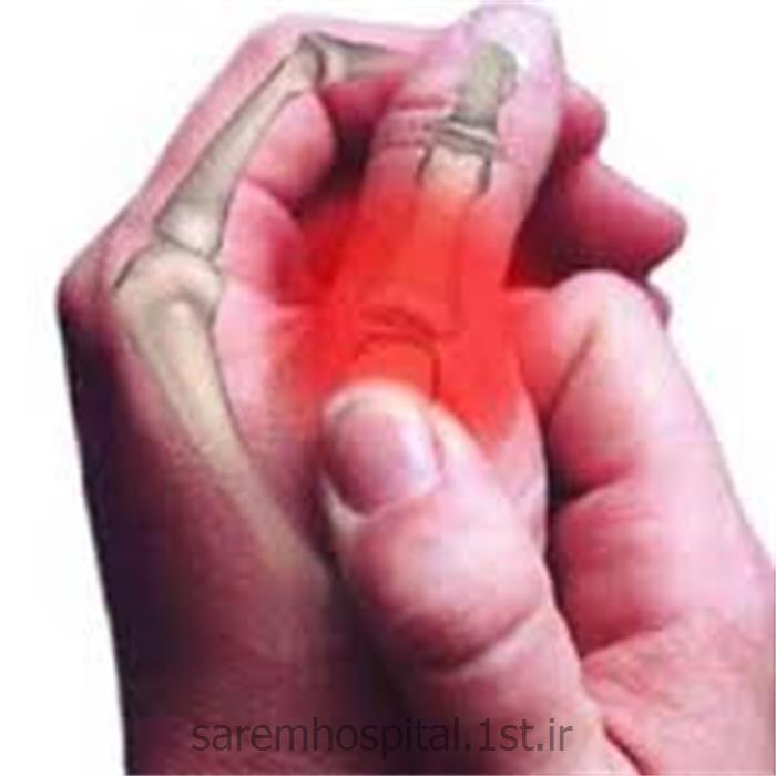 عکس خدمات درمانی فیزیوتراپیدرمان التهاب مزمن مفاصل
