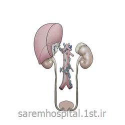 عکس جراحیجراحی اورولوژی ترمیمی