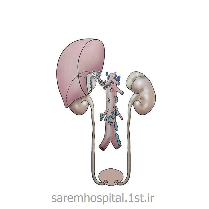 جراحی اورولوژی ترمیمی