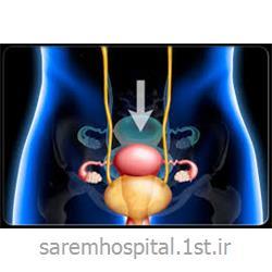 عکس جراحیاصلاح افتادگی رحم از طریق لاپاراسکوپی