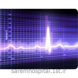 عکس تشخیص و درمان دردالکتروکاردیوگرافی سکته قلبی ( نوار قلب ECG)