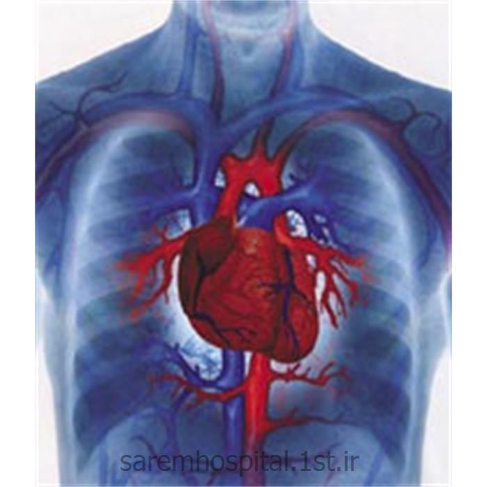 الکتروکاردیوگرافی سکته قلبی ( نوار قلب ECG)