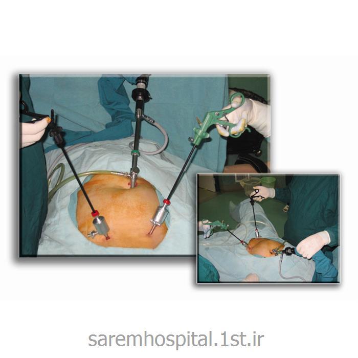 جراحی لاپاراسکوپی شکم (Laparoscopy)
