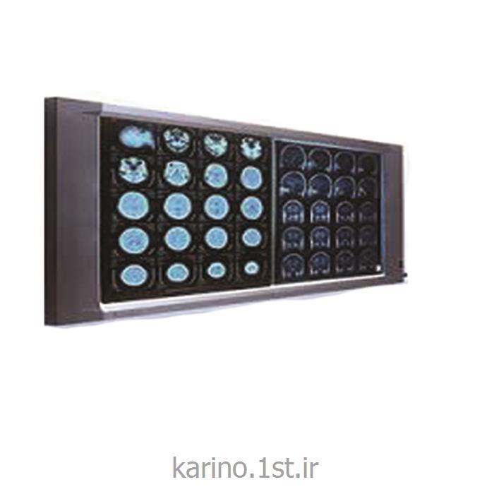 تعمیر انواع نگاتوسکوپ های ال ای دی Negatoscope LED
