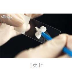 عکس تشخیص و درمان دردآزمایش پاپ اسمیر به روش تین پرپ