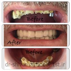 بازسازی دندانهای ساییده شده