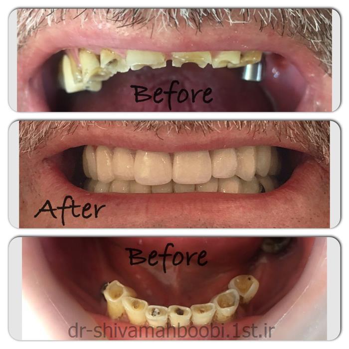 بازسازی دندان های ساییده شده با روکش های زیبایی