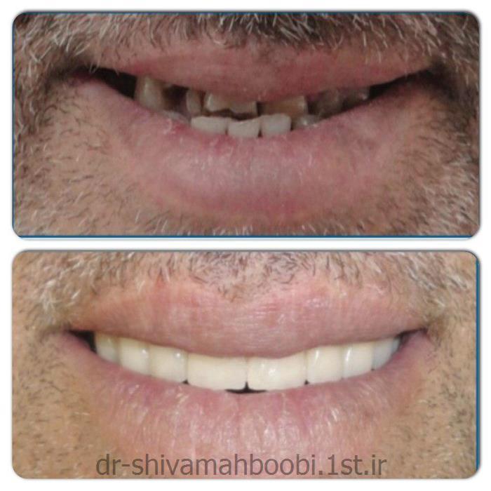 بازسازی دندان های به شدت ساییده شده