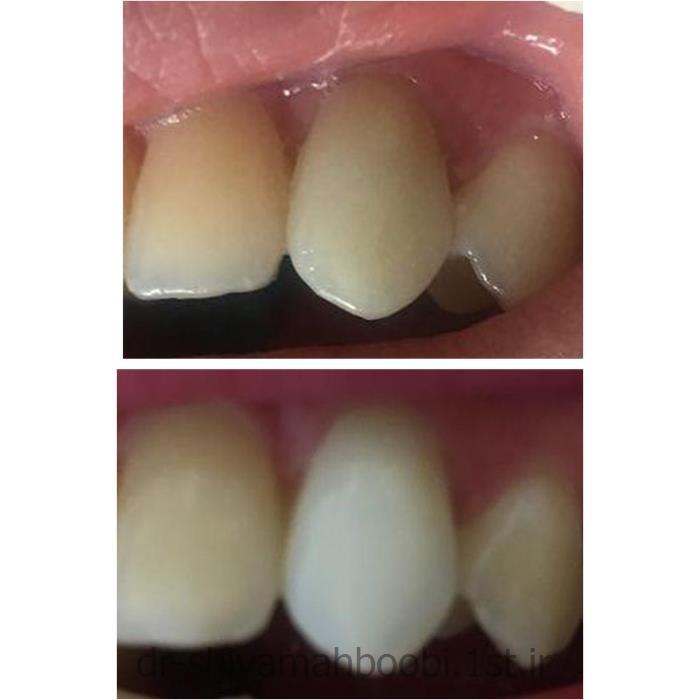 عکس خدمات درمانی دندانپزشکیسفید کردن دندانهای تغییر رنگ یافته (بلیچینگ)