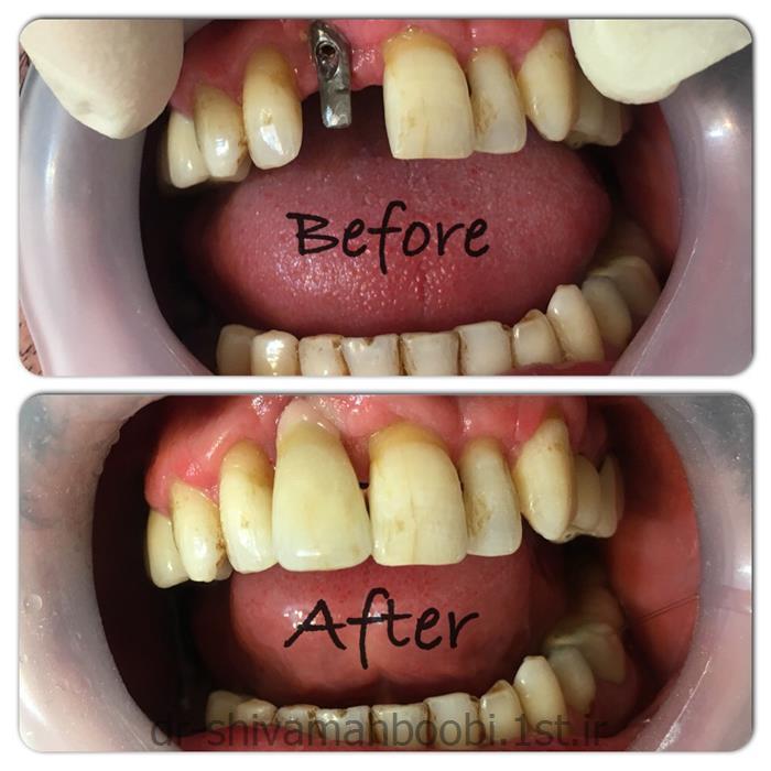 روکش ایمپلنت دندان جلو