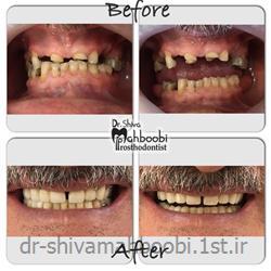 بازسازی دندان های ساییده شده با روکش و پروتز متحرک