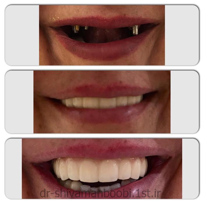 بازسازی کل دندانهای از دست رفته با ایمپلنت
