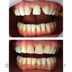 بستن فضاهای بین دندانی