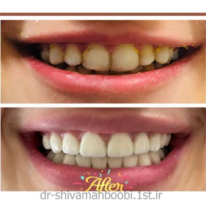 لامینیتهای تمام سرامیکی زیبایی جهت اصلاح دندان