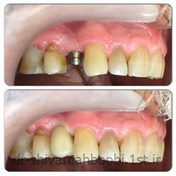 کاشت دندان بدون نیاز به تراش دندان های مجاور