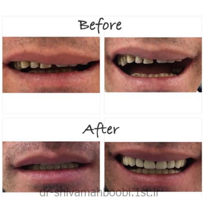 بازسازی دندانهای ساییده شده با روکشهای دندانی