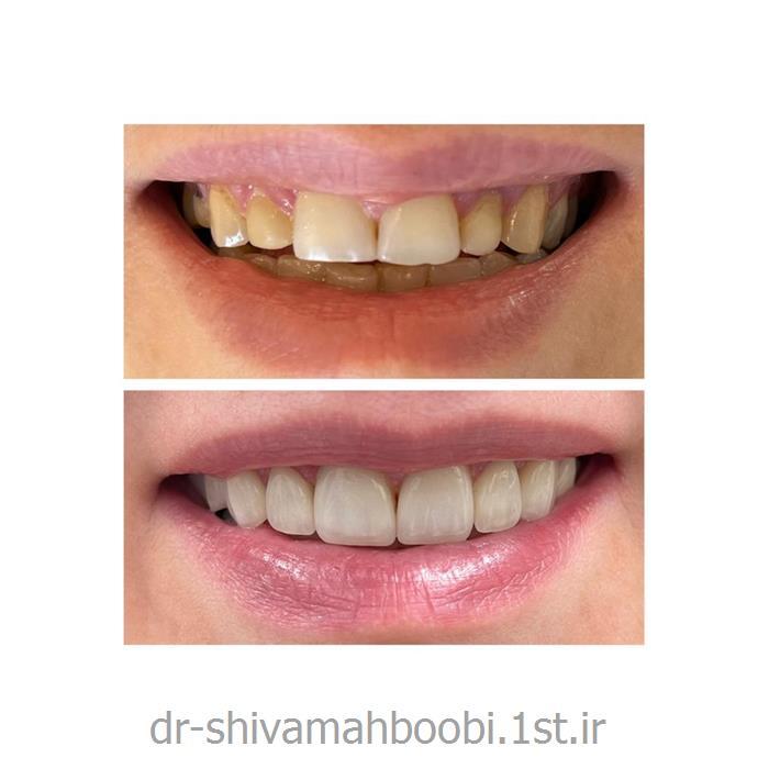 لامینیتهای تمام سرامیکی برای اصلاح فرم دندان