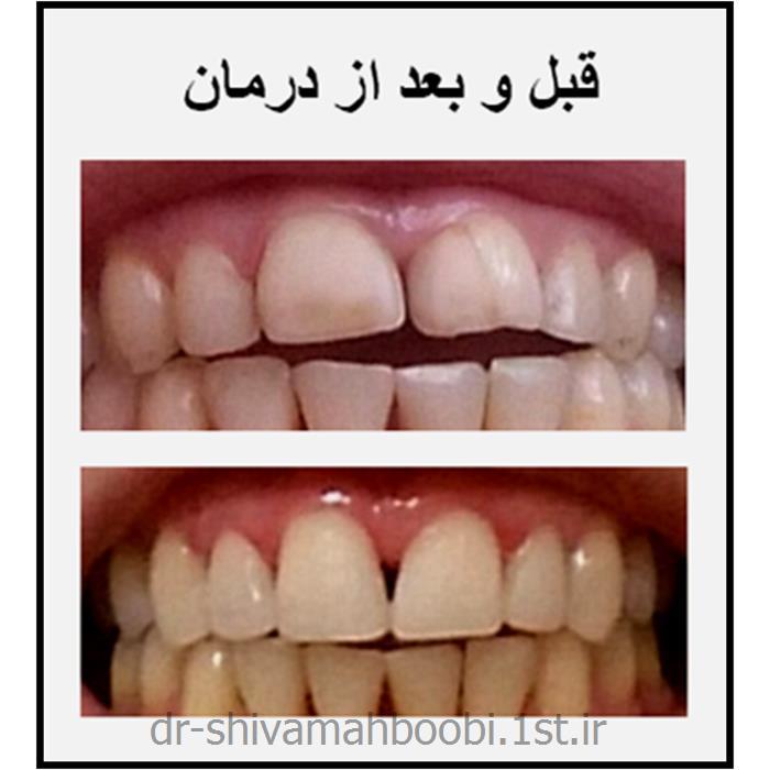 عکس خدمات درمانی دندانپزشکیلامینیت (ونیر) های کامپوزیتی