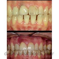 عکس خدمات درمانی دندانپزشکیترکیب درمان ارتودنسی و روکش زیبایی تمام سرامیک