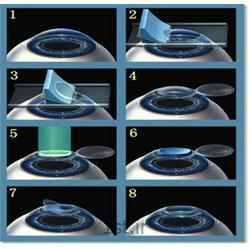 عمل جراحی تخصصی لیزیک چشم Lasik