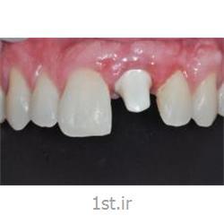 جراحی ایمپلنت(کاشت دندان با فیکسچر درجه یک سوئیسی)