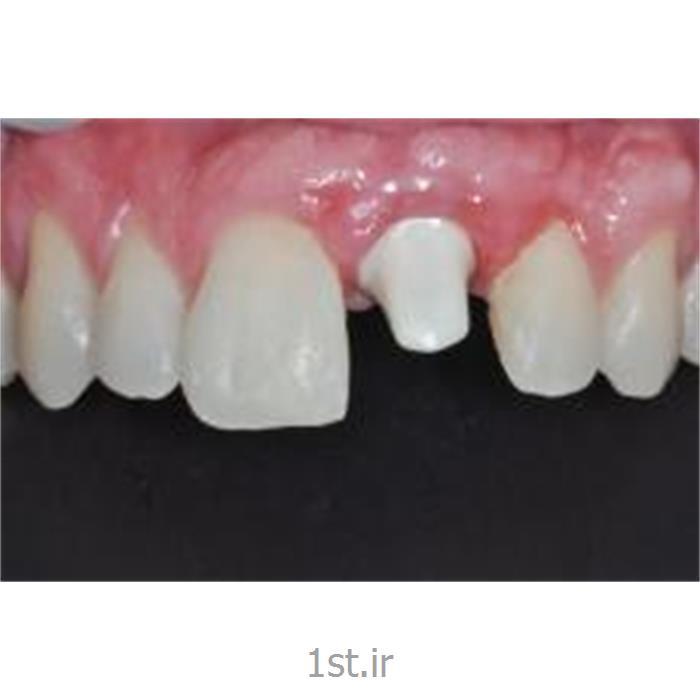 عکس خدمات درمانی دندانپزشکیجراحی ایمپلنت(کاشت دندان با فیکسچر درجه یک سوئیسی)
